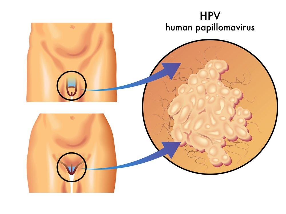 Папилломы лечение в домашних условиях чесноком